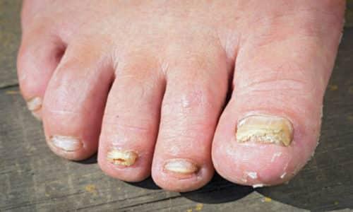 Если своевременно не начать терапию, грибок распространяется на другие ногти, поражает кожу между пальцами, что доставляет неприятный дискомфорт, негативно отражается на качестве жизни