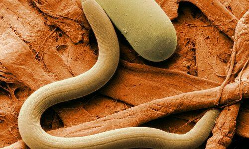 Нарушение выхода секрета поджелудочной железы происходит при пороках развития или закупорке протоков желчного, двенадцатиперстного отдела кишечника вследствие глистных инвазий