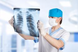 Рентгенография легких при бронхите