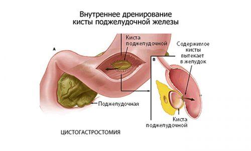 В медицинской практике используется наружное или внутреннее дренирование. Последнее получило хорошие рекомендации, т. к. риск рецидива после него низок, а боль в животе проходит