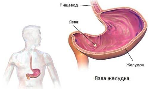 Запущенное заболевание поджелудочной железы может вызвать язву желудка и кишечника