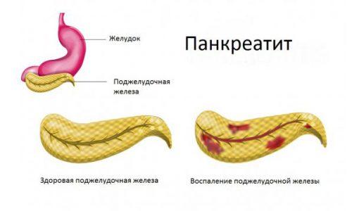 Приступ панкреатита развивается вследствие закупорки выводного протока органа, развития воспаления и отека тканей или формирования рубцов и уменьшения просвета выводного протока