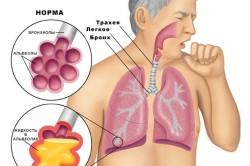 Специфические изменения в легких при пнемонии