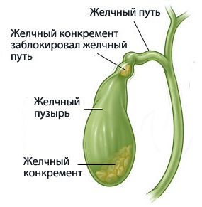Желчный пузырь, анатомия