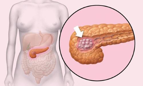 Опухоли поджелудочной - это новообразования, берущие свое начало из паренхимы органа или из панкреатических протоков