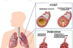 Схема хронической обструктивной болезни легких