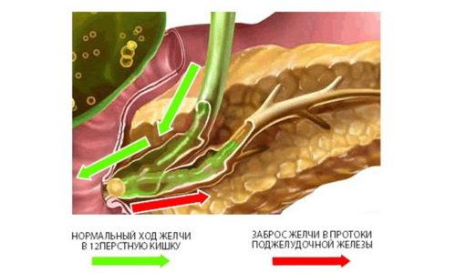 Выход камня из желчного пузыря приводит к застою поджелудочного сока